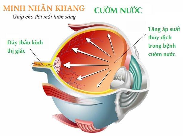 Tăng áp suất thủy dịch trong mắt có thể dẫn tới cườm nước